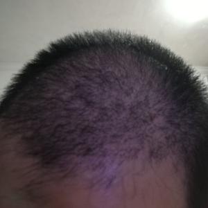 别害怕我在-植发术后第28天图片