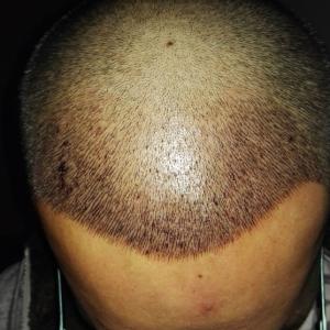 何必在一起-植发术后第4天图片