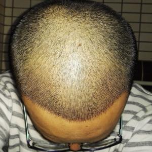 何必在一起-植发术后第8天图片