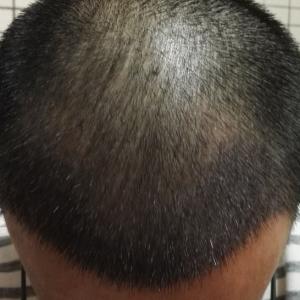 何必在一起-植发术后第15天图片