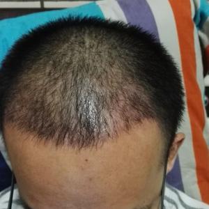 何必在一起-植发术后第28天图片