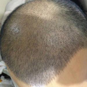现在开始忘记-植发术后第8天图片