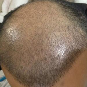 现在开始忘记-植发术后第11天图片
