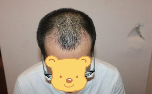 头顶头发稀疏