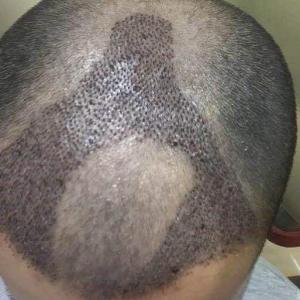 莪在妳身後-植发术后第4天图片