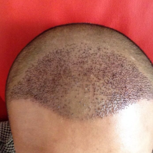 欲望在呐喊-植发术后第4天图片