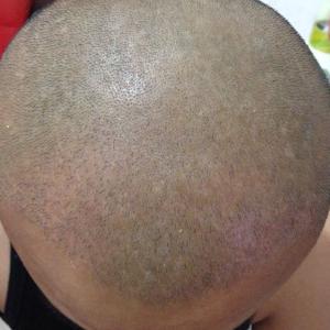 欲望在呐喊-植发术后第33天图片