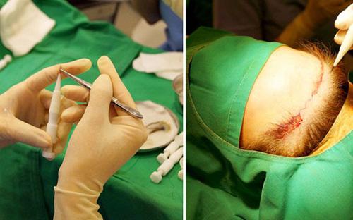 加密植发手术过程