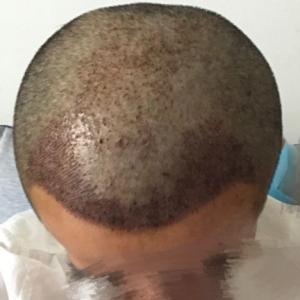 你若一直在-植发术后第2天图片