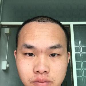 愈加的怀念-植发术后第17天图片