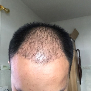 愈加的怀念-植发术后第32天图片