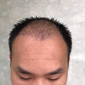 愈加的怀念-植发术后第37天图片
