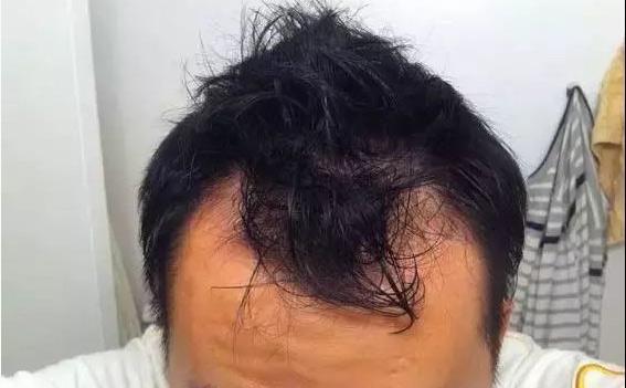 男性发际线脱发