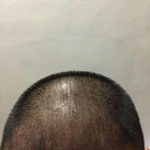 傻吧唧-植发术后第28天图片