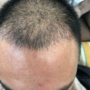 傻吧唧-植发术后第38天图片