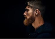 胡须种植后效果自然吗 种植的适应症有哪些