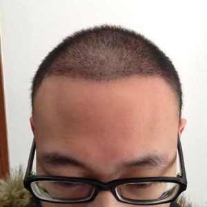 哥有哥的-植发术后第20天图片