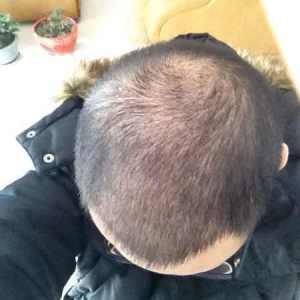 哥有哥的-植发术后第25天图片