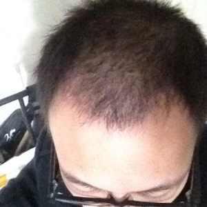 哥有哥的-植发术后第62天图片