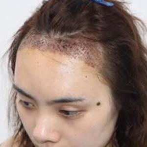 酷到爆炸-植发术后第3天图片