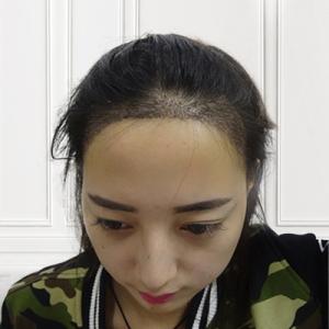 萌妞优酸乳-植发术后第9天图片