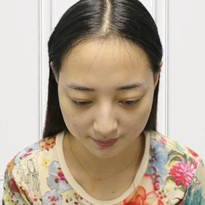 萌妞优酸乳-植发术后第90天图片