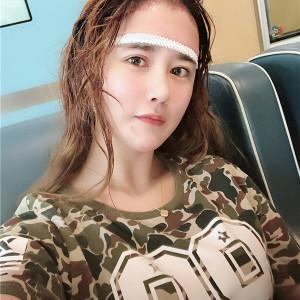 尐萌轩-植发术后当天图片