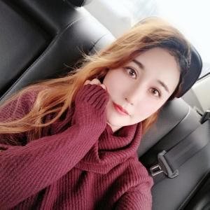 尐萌轩-植发术后第71天图片