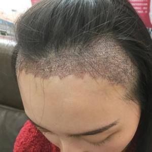 辣条味的仙女-植发术后第3天图片